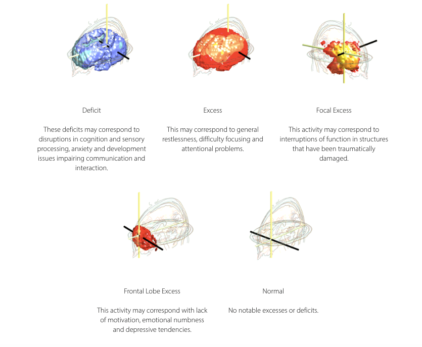 What EEG Findings Can Tell Us | Brain Treatment Centre Australia
